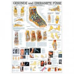 Gesunde u. erkrankte Füße Lehrtafel 70 x 100 cm