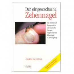 'The ingrown toenail'